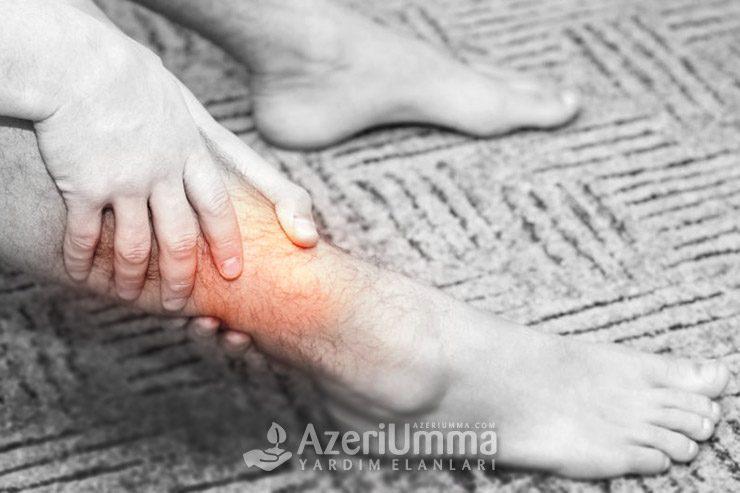 Safeno-femoral: Abgül qardaşın ayaqları çürüyür